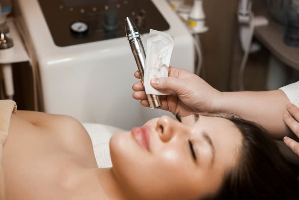 What is Microneedling with Radio Frequency?