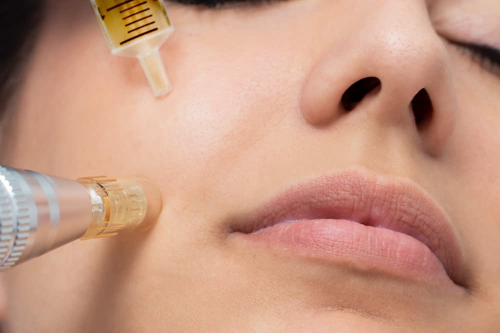 Microneedling radiofrequency can improve acne.